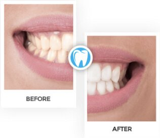 Teeth Treatment Results