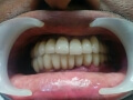 Full Mouth Treatment