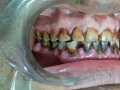 Before Full Dental Implant