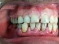 Full Dental Implants Treatment