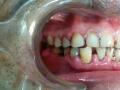Full Dental Treatment