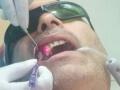 Laser Dentistry