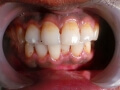 Tooth Implants Result