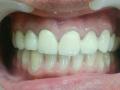 Upper Anterio Treatment