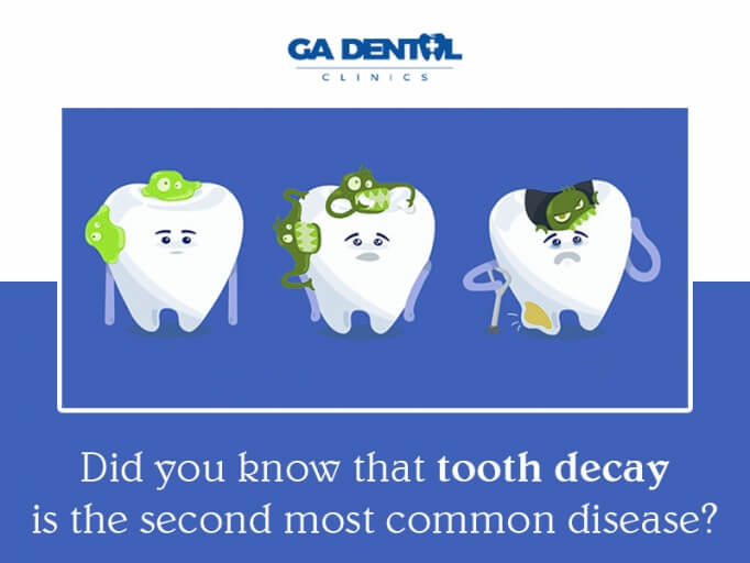 Tooth Decay Is Very Common