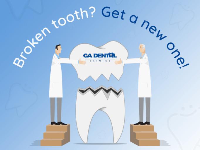 Treatments for Broken Teeth
