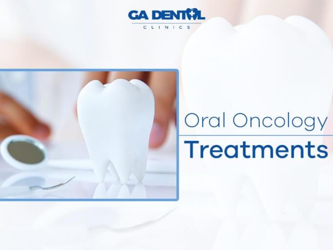 Oral Oncology Bringing Smiles Back