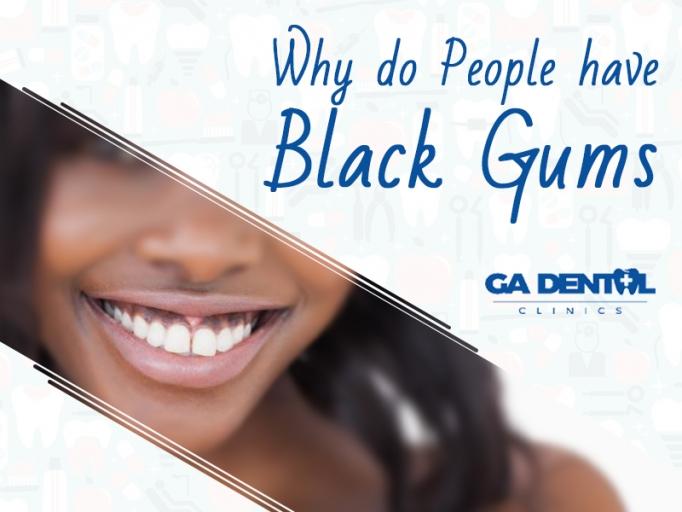 Do People Have Black Gums