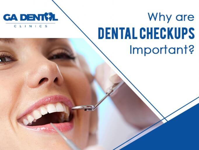 Importance of Dental Checkups