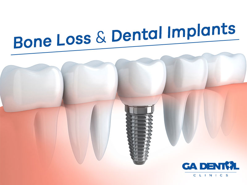 Bone Loss Impacts Dental Implants