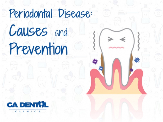 Periodontal Disease Causes and Prevention