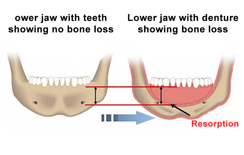 Jaw Structure