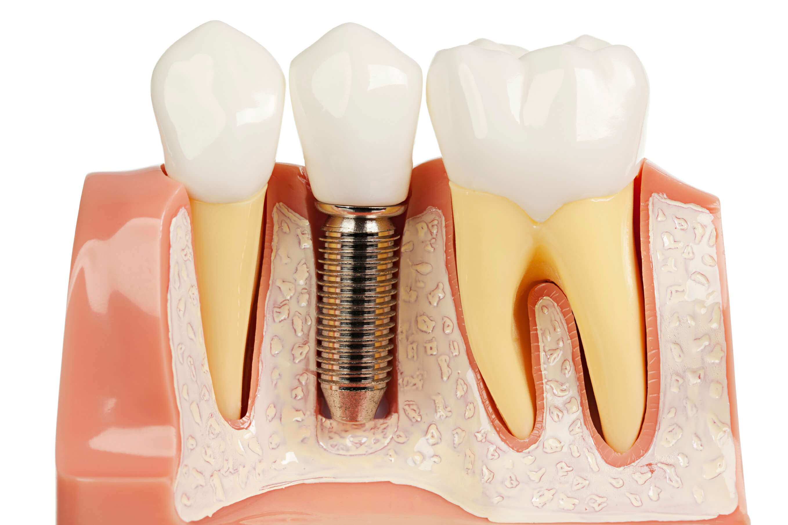 Dental Bone Loss