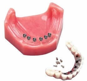 Detachable Dental Implants