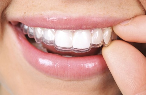 Clear and Immovable Aligners