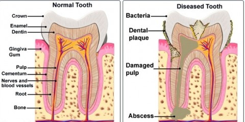 Normal VS Diseased Tooth