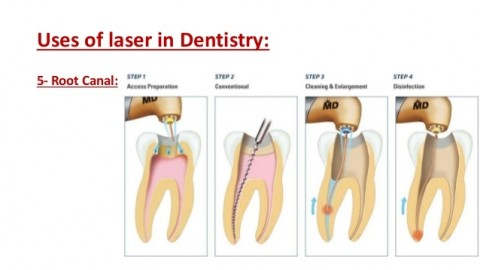 Uses of Laser Dentistry