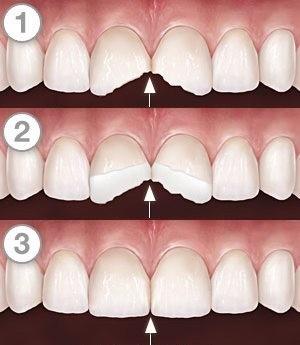 Types of Teeth Bonding