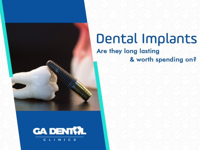 Permanent Dentures Cost In India >> Dental Implants: Are They Worth It and Are They Durable? | GA Dental Clinics