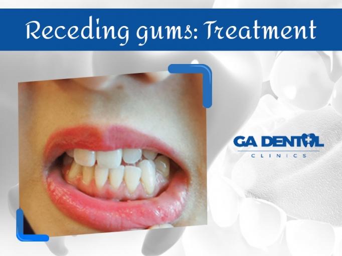 Painful Receding Gums