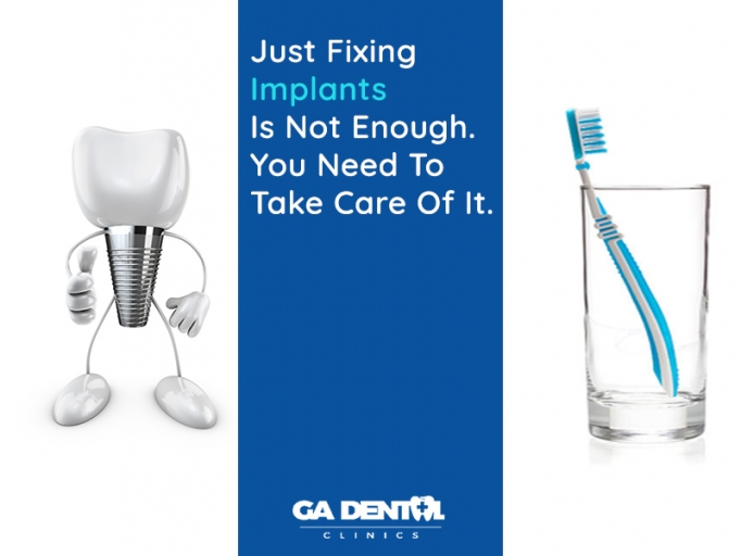 Dental Implants Care