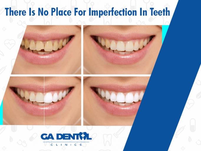 Teeth Bonding Treatment