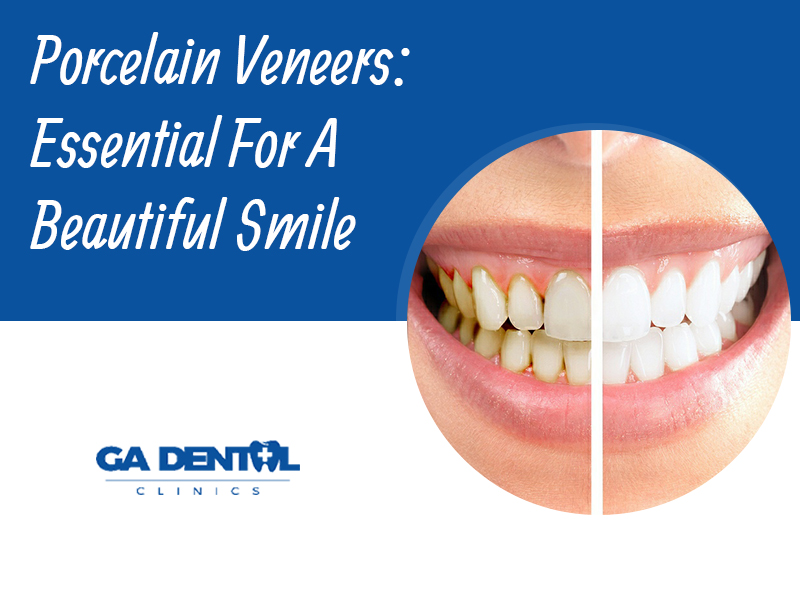 Dental Porcelain Veneers: Why Do You Need Them?