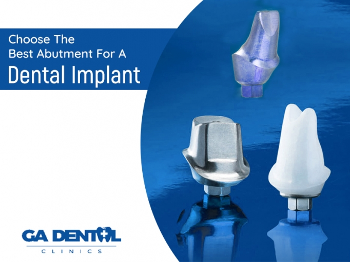 Dental Implants? Here Are The Best Abutments You Need To Know About!