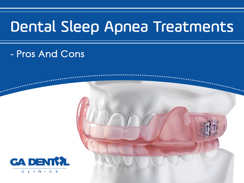 Here's All You Need To Know About Sleep Apnea Treatments!