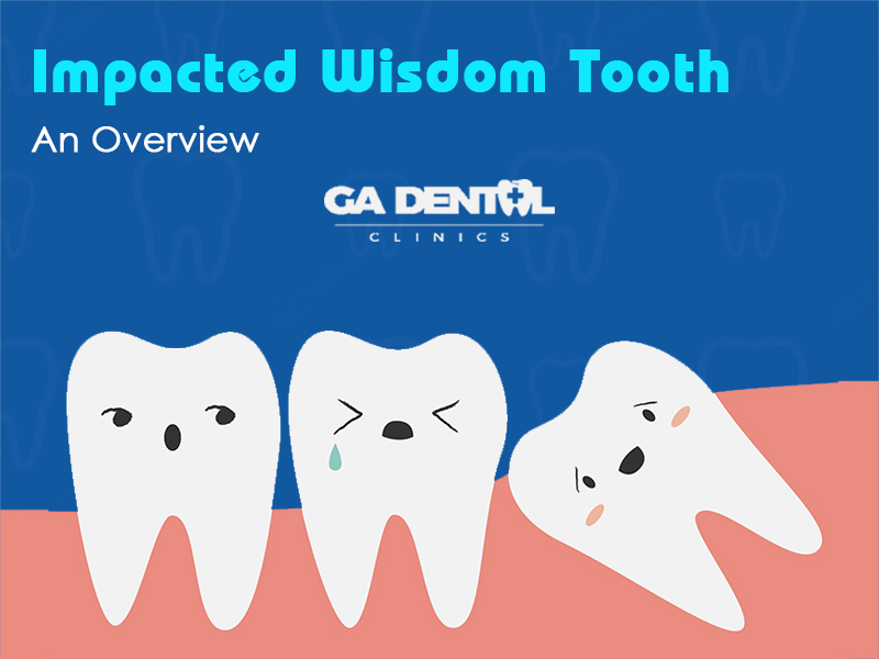 Wisdom Teeth? Here's How You Know If It Is Impacted!