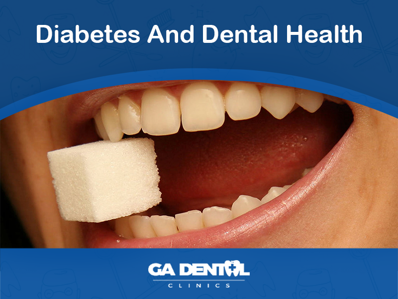 Diabetes And Dental Health The Connection