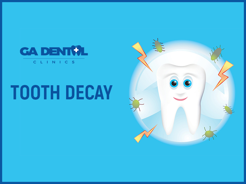 A Video On Tooth Decay
