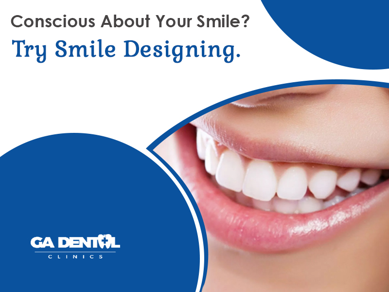 Conscious About Your Smile Try Smile Designing