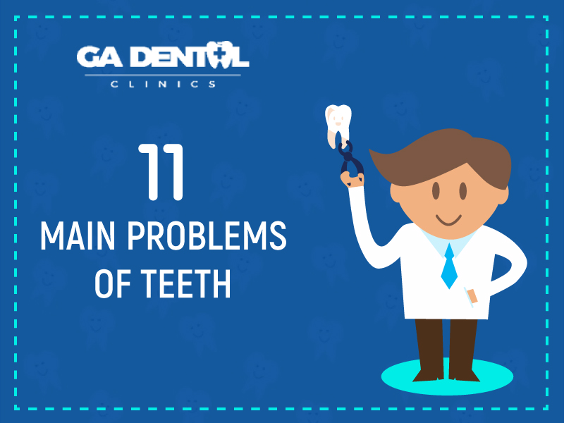 11 Main Problems Of Teeth