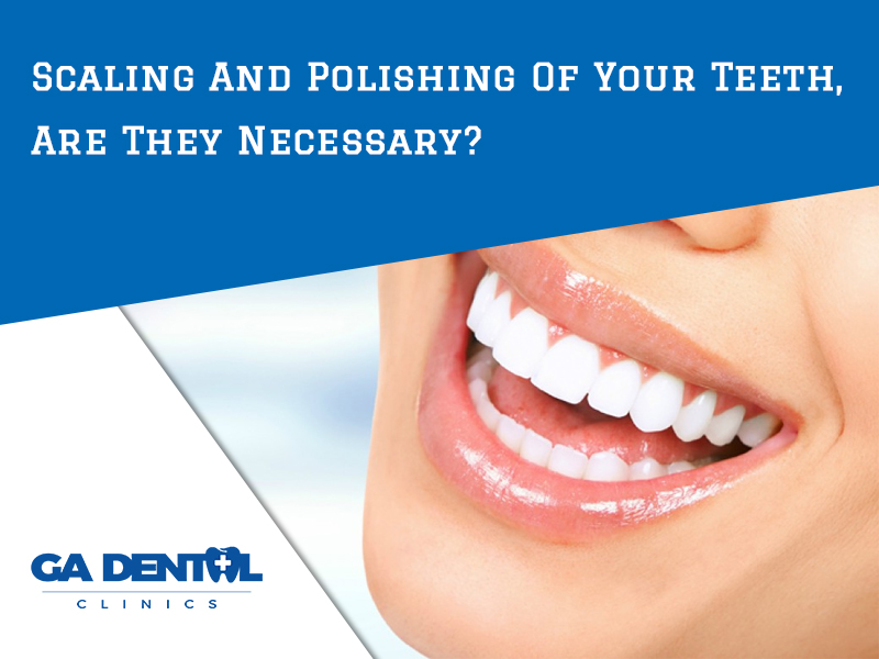 Scaling And Polishing Of Your Teeth – Are They Necessary?