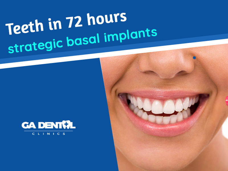 Teeth In 72 Hours- Strategic Basal Implants