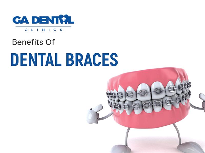 Your Dental Braces Are Multipurpose!