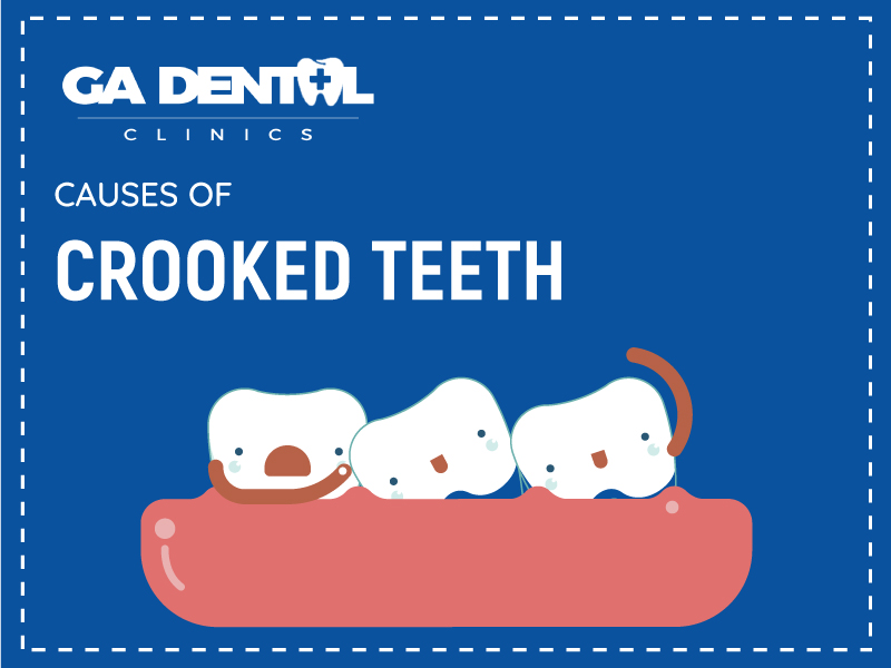 An Infographic on the Causes of Crooked Teeth