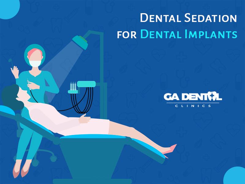 Dental Sedation For Dental Implants