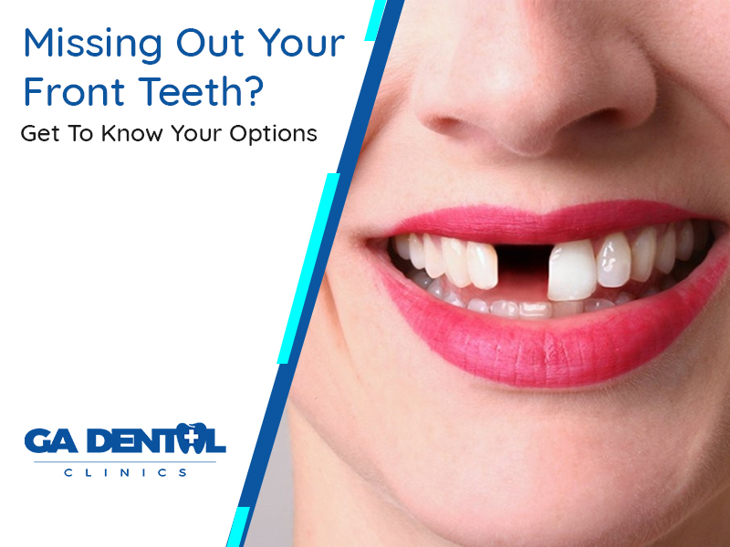 Missing Out Your Front Teeth? Get To Know Your Options
